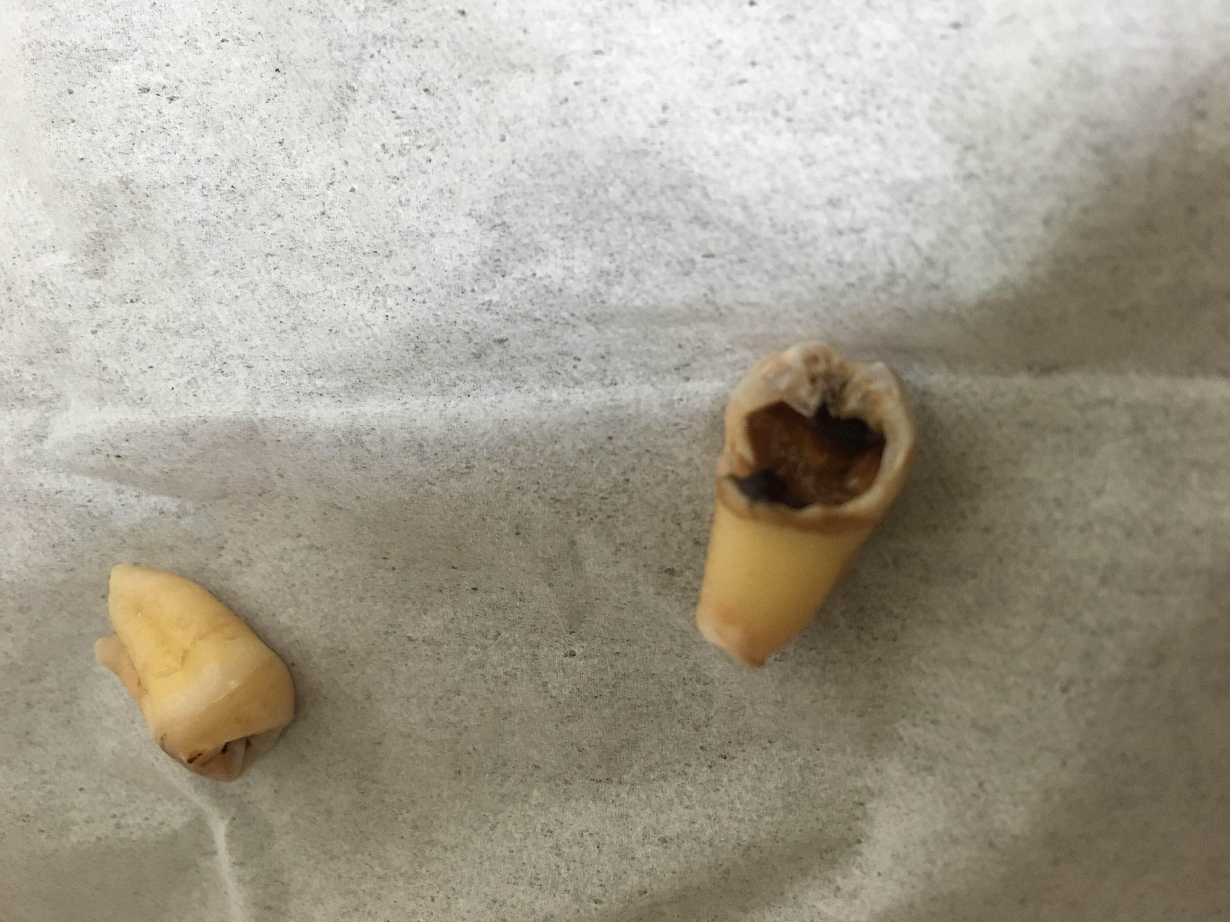 【閲覧注意】虫歯になった親知らずを2本同時に抜歯してきた。